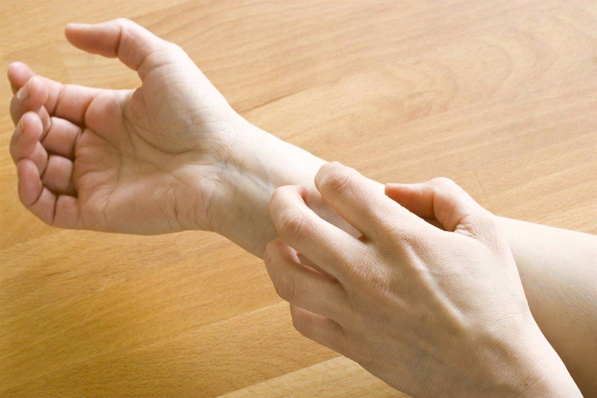 Complicaciones de la dermatitis atópica en las manos