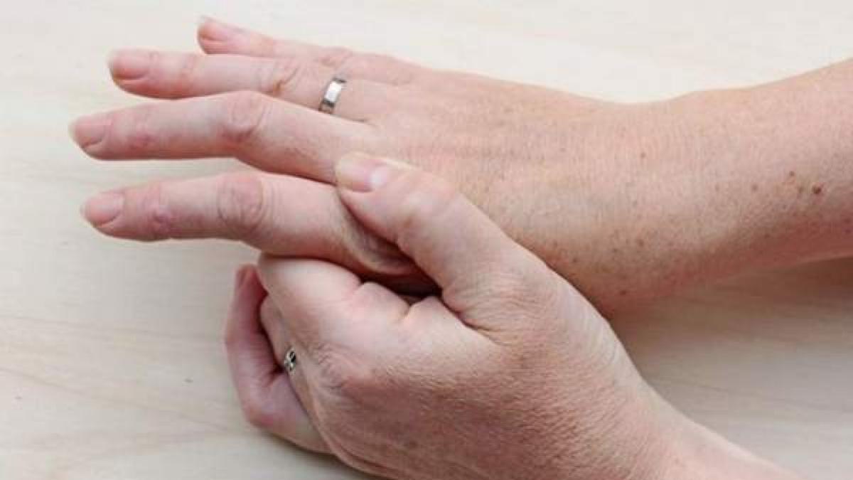 Dermatitis atópica de la mano