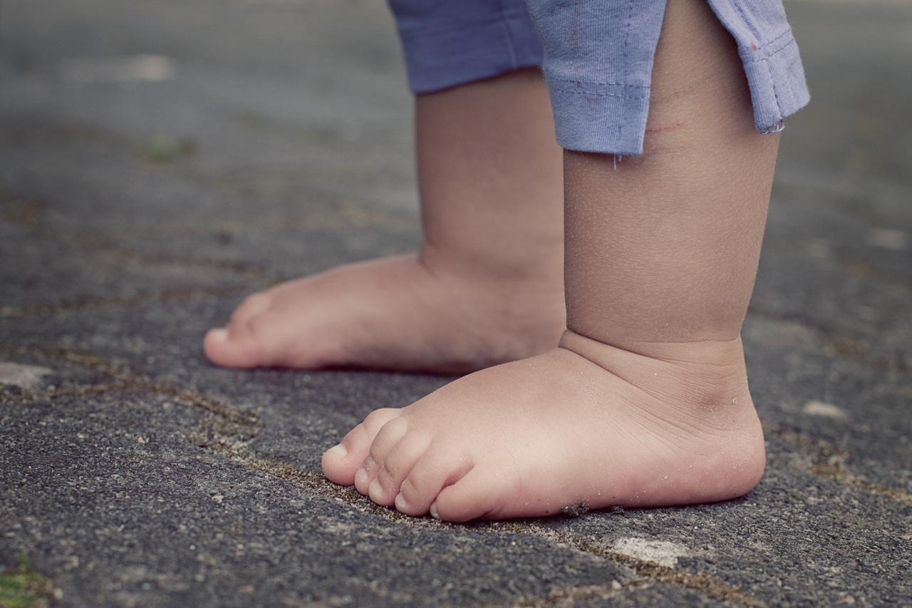 Posibles complicaciones de la dermatitis atópica en niños