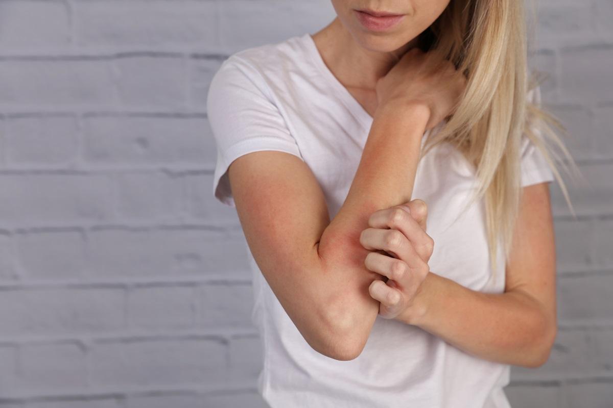 Pricnipales causas de la dermatitis atópica