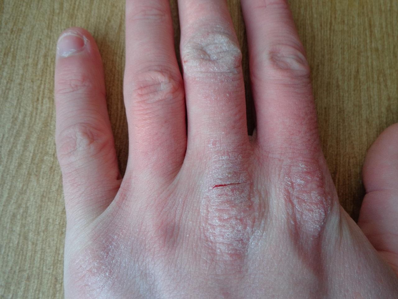 Qué es la dermatitis atópica en manos