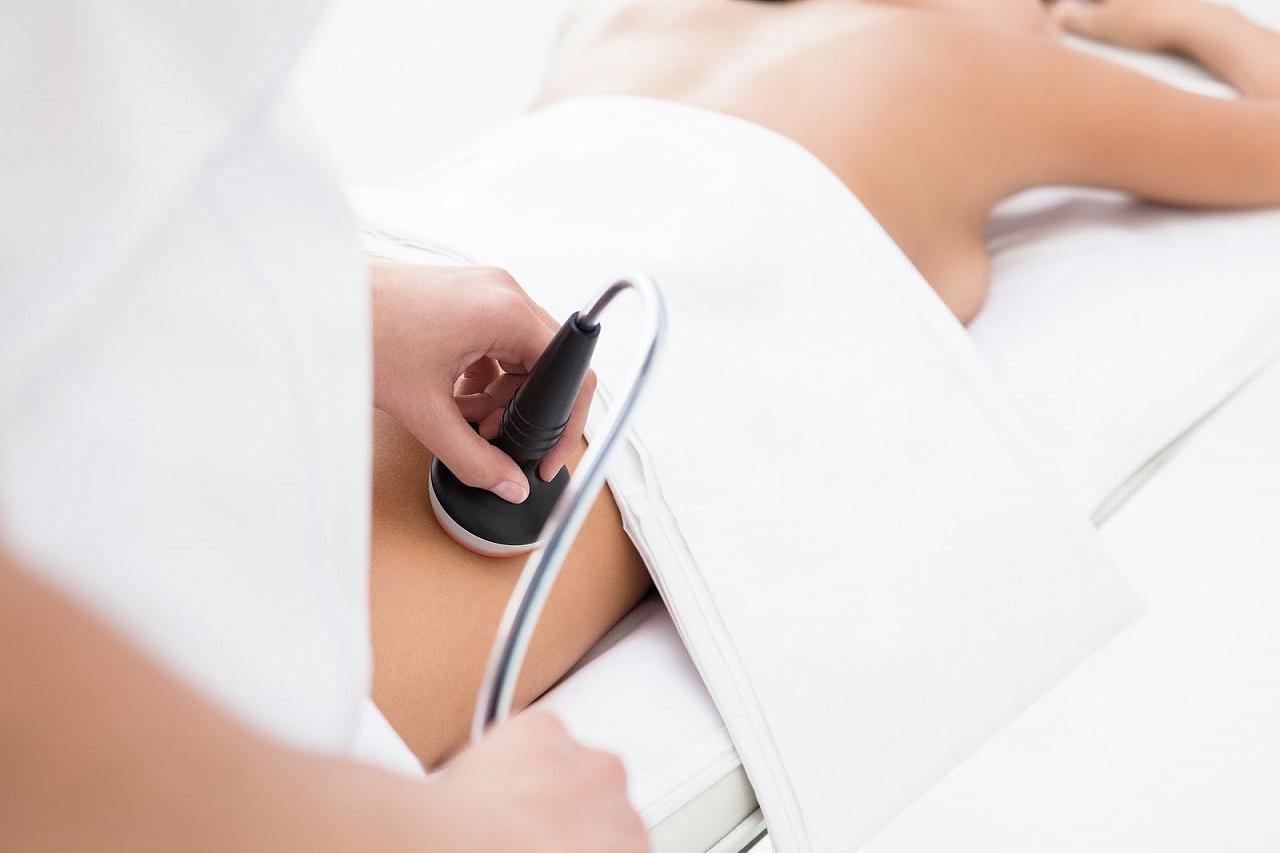 Tratamientos médicos para las estrías