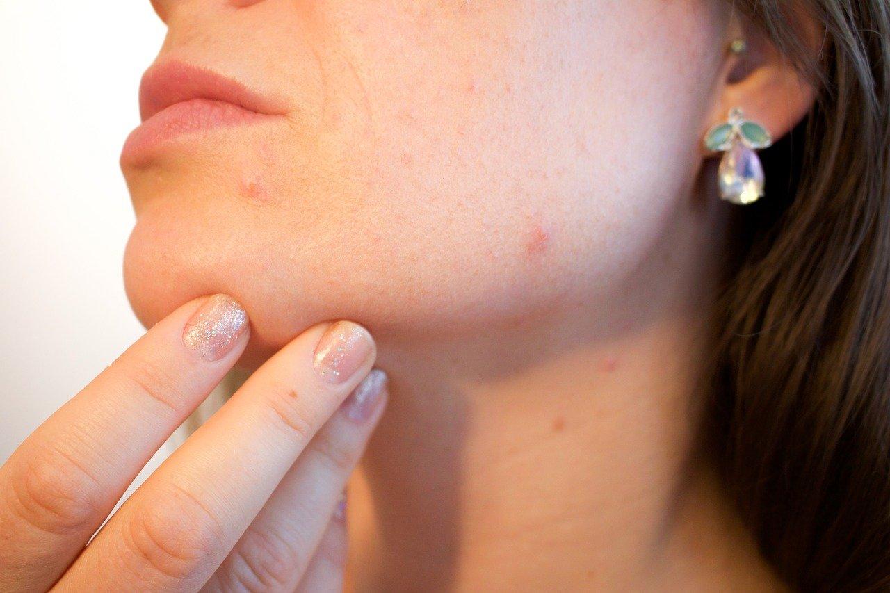 ¿Es perjudicial en pieles con acné